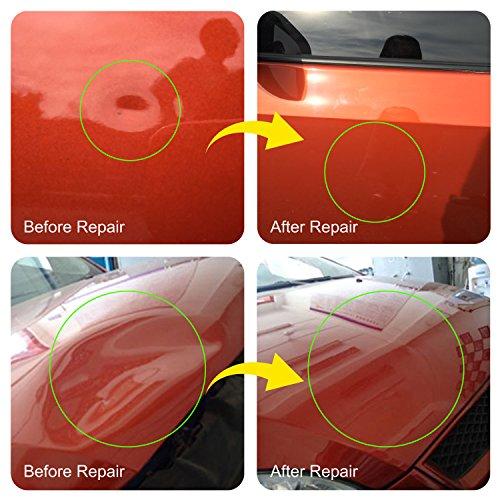 Pops A Dent Diy Car Repair Kits