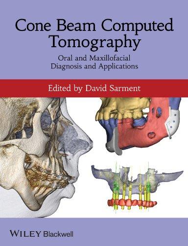Cone Beam Computed Tomography: Oral and Maxillofacial Diagnosis and Applications