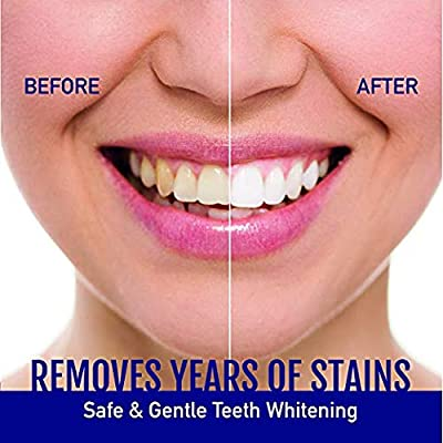 Teeth Whitening Pen, Natural Carbamide Peroxide Gel, Instant Natural Whitener,33+ Uses, Effective, Painless, No Sensitivity, Travel-Friendly, Easy to Use, Beautiful White Smile, Natural Flavor