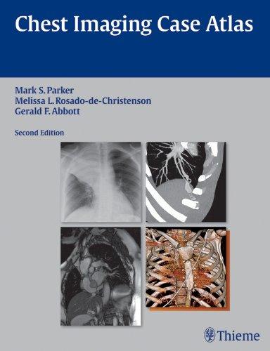 Chest Imaging Case Atlas (2nd 2012) [Parker, Rosado-de-Christenson & Abbott]