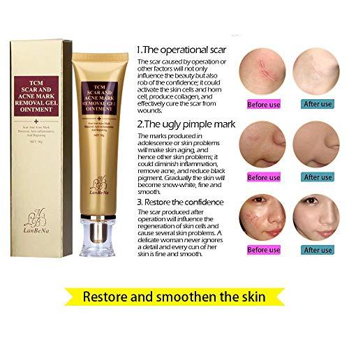 Tcm Acne Scar Removal Cream Kobwa Scar Cream Skin Repair Cream