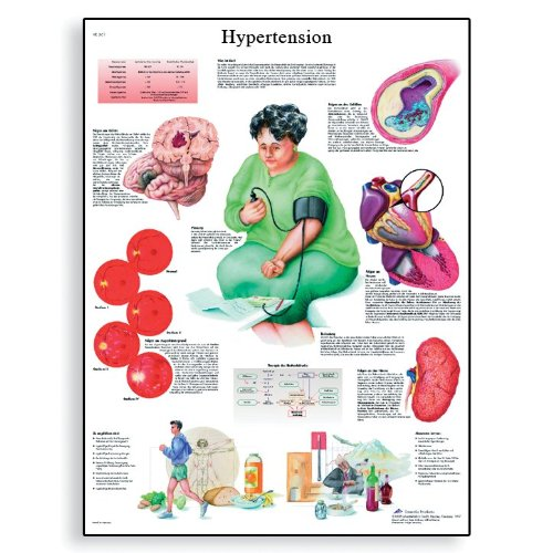 3B Scientific VR1361L Glossy Laminated Paper Hypertension Anatomical Chart, Poster Size 20