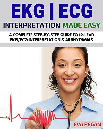 EKG Interpretation Step Step Arrhythmias ebook