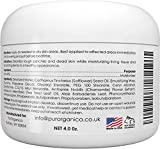 PurSources Urea 40% Foot Cream - No Pumice Stone