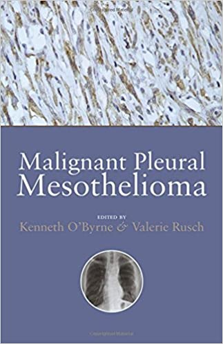 Malignant Pleural Mesothelioma Amazon Co Uk O Byrne Kenneth Rusch Valerie Books