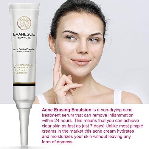 Acne Erasing Emulsion (2 x 20ml) Acne Treatment Cream To