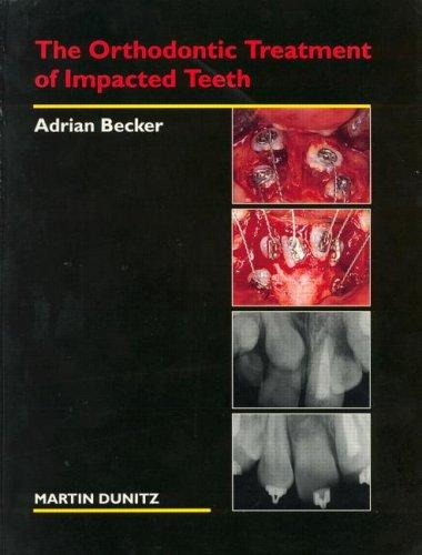 The Orthodontic Treatment of Impacted Teeth