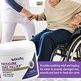 TriDerma Pressure Sore Relief Healing Cream, 4 Ounces