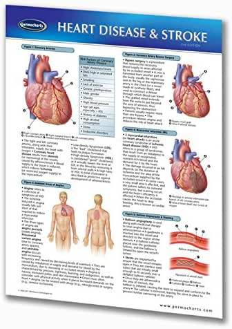 Heart Disease & Stroke Guide - Quick Reference Guide by Permacharts