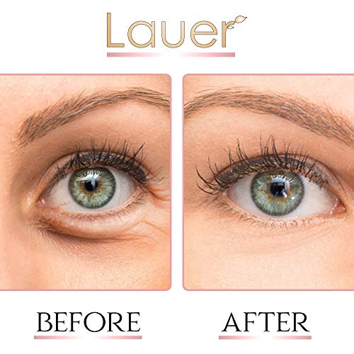 Lauer Under Eye Bags Treatment Patches | Eye Mask with Hyaluronic