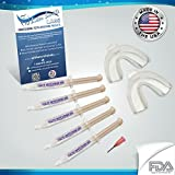 Teeth Whitening Gel Reviews Fast Teeth Whitening Kit, W/ Teeth Whitening Trays , 5- XL 38% Teeth Whitening Gel, High Intensity, Sensitivity Free, Carbamide Peroxide Teeth Whitener Syringes! NEW! Highest Quality , FASTEST RESULTS ON AMAZON, READ ABOUT US! ONLY WHITENING GEL ON AMAZON, MADE IN A USA ,FDA Compliant, Dental Lab. Same Gel Your Dentist Uses, Recommends, And Sells, NOT Cheap Imitation, Overseas Bleaching Gel. NO Teeth Sensitivity or Gum Irritation. FAST PROFESSIONAL RESULTS! Includes Precision Gel Applicator/Dispenser Tip, Takes the guesswork out of how much gel to apply! FAST FREE SHIPPING!