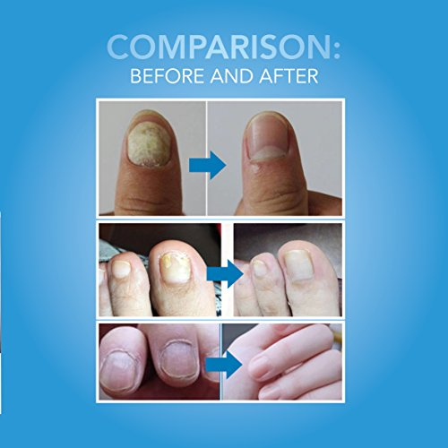 Arishine Fungus Treatment Fungus Stop Anti Fungus Nail Treatment Effective Against Nail Fungus Anti