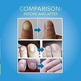 Arishine Fungus Treatment, Fungus Stop, Anti Fungus Nail Treatment, Effective Against Nail Fungus, Anti Fungal Nail Solution, Toenails and Fingernails Solution