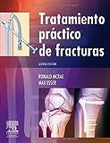 img - for Tratamiento pr ctico de fracturas book / textbook / text book
