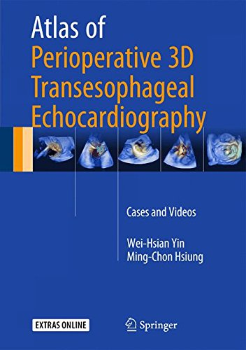 Atlas Of Perioperative 3D Transesophageal Echocardiography  Cases And Videos