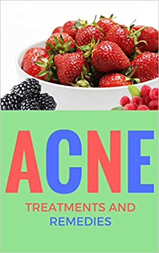Acne: Treatments and Remedies