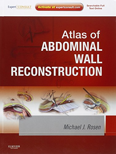 Atlas of Abdominal Wall Reconstruction: Expert Consult - Online and Print, 1e