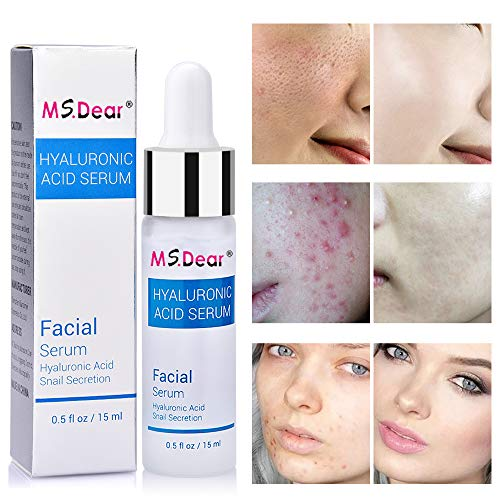 MS.DEAR Hyaluronic Acid Serum for Skin, Anti-Aging, Lift and Firm skin, Prevents Wrinkles and Acne, Moisturize, Snail Secretion Pure Hyaluronic Acid Serum for Face, 15ml