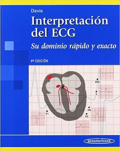 Davis:interpretaci—n Del Ecg 4a.ed. por Davis epub