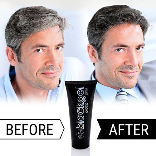 Amazon Com Blackgel Best Styling Gray Hair Coverage For Men