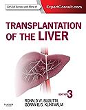 Transplantation of the Liver E-Book