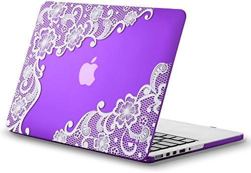 Kuzy Rubberized MacBook Display 15 Inch