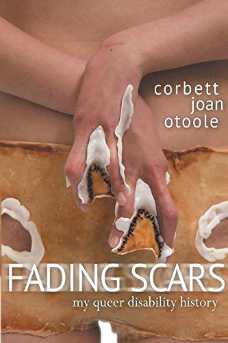 Fading Scars: My Queer Disability History (Book) written by Corbett Joan OToole