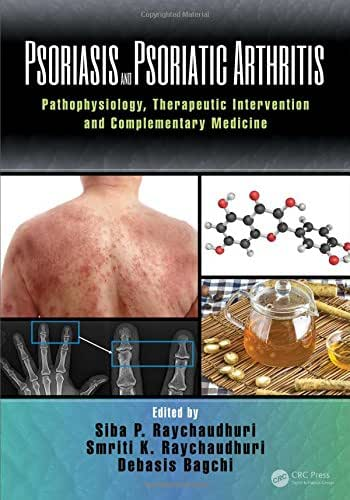 Psoriasis and Psoriatic Arthritis: Pathophysiology, Therapeutic Intervention, and Complementary Medicine