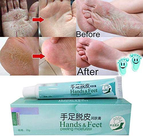 Powerful Hand Foot Crack Cream Heel Chapped Peeling Foot and hand Repair Anti Dry Crack Skin Care Chinese Ointment By Shouhengda