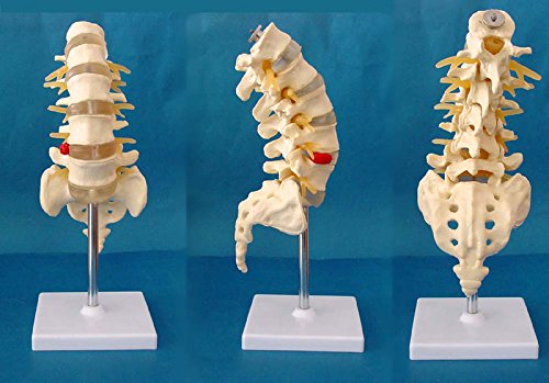 Medical Human spine Spine pathology demonstration model Anatomical Model Lumbar Vertebrae Sacrum & Coccyx, with Herniation Disc Sold by East dental
