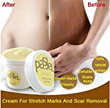Cream For Stretch Marks And Scar Removal Powerful To Stretch Marks Maternity Skin Body Repair Cream Remove Scar Care Postpartum, 50g, 2 Count