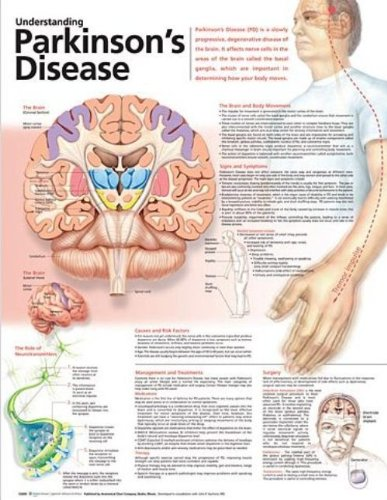 Understanding Parkinson's Disease Anatomical Chart Anatomical Chart Company Understanding Parkinson' s Disease Anatomical Chart Clearway Logistics Phase 2-3 781786363 M0781786363 Medical / Nursing ANF: Health and Wellbeing Anatomy Education & Training
