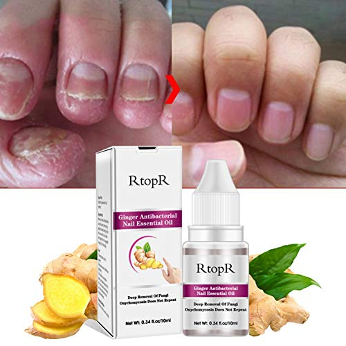 - Ginger Antibacterial Nail Essential Oil Deep Removal Of Fungal Onychomycosis Nail Repair Oil 10 ml
