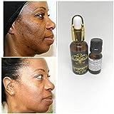Bleaching Oily Skin - (1 oz / 30 ml) Lactic Acid Peel 88% -Chemical Peel-Unbuffered-Alpha Hydroxy (AHA) For Acne, Oily Skin, Wrinkles, Blackheads, Large Pores,Skin Lightening & Free After Peel Lightening & Brightening Oil