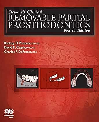 Amazon Com Stewart S Clinical Removable Partial Prosthodontics