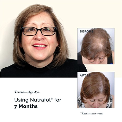 Hair Loss Thinning Supplement – Women Hair Vitamin for Thicker Healthier Hair by Nutrafol (Image #8)