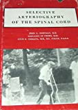 Selective Arteriography of the Spinal Cord, John L. Doppman and Giovanni DiChiro, 0875270069