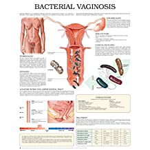 Bacterial vaginosis e chart: Full illustrated