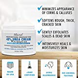Urea Cream 40% Plus Salicylic Acid 4.6 Oz, Callus