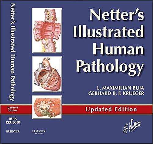 Amazon.com: Netter\'s Illustrated Human Pathology Updated Edition E ...