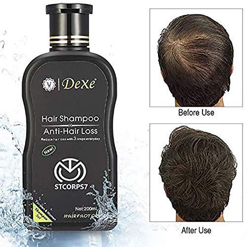 Hair Growth Shampoo Chinese Herbal Anti-Hair Loss Hair Shampoo For Men & Women 200 ml