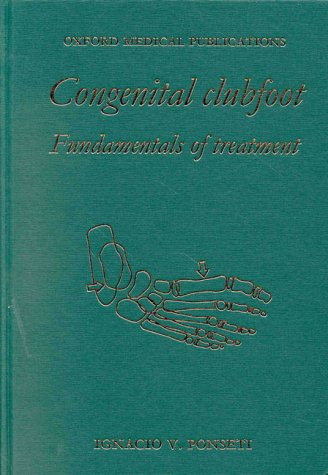 Congenital Clubfoot: Fundamentals of Treatment by Oxford University Press