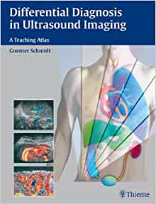 Differential Diagnosis in Ultrasound Imaging: A Teaching Atlas 1st