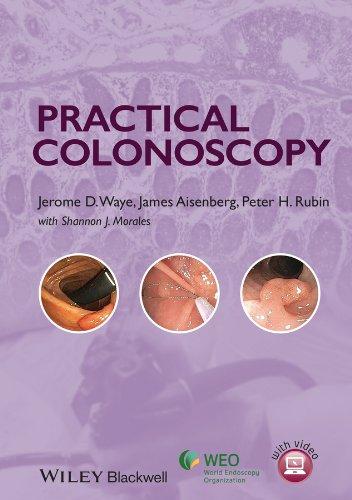 Practical Colonoscopy