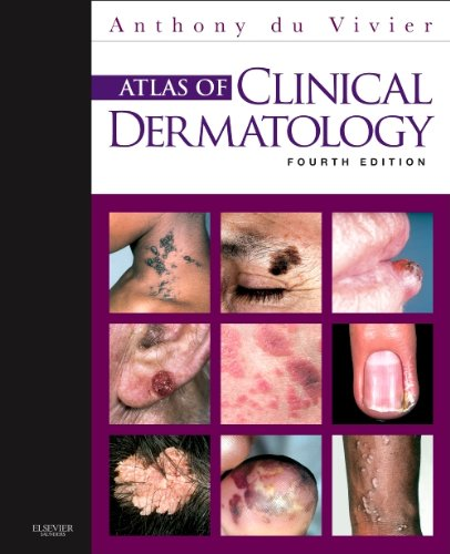 Atlas of Clinical Dermatology, 4e (du Vivier, Atlas of Clinical Dermatology)