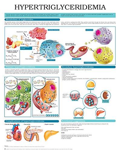 (Hypertriglyceridemia e chart: Full illustrated)