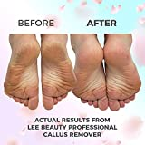 8oz Callus Remover gel for feet for a