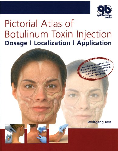 Pictorial Atlas Of Botulinum Toxin Injection  Dosage  Localization  Application