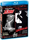 X-ray / Schizoid: Double Feature [Blu-ray + DVD] [Import]