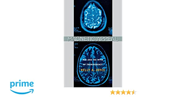 Magnetic Appeal: MRI and the Myth of Transparency: 9780801474569: Medicine & Health Science Books @ Amazon.com